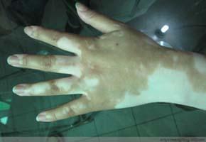 手指甲上有白点是怎么回事